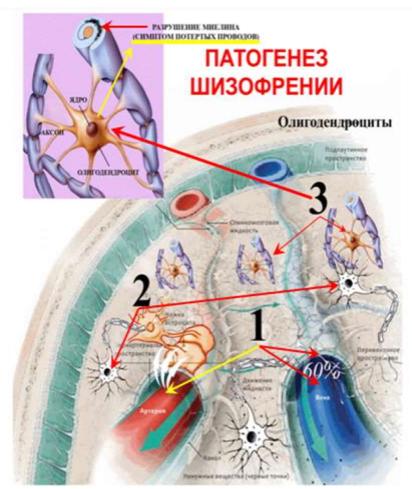 Патогенез шизофрении